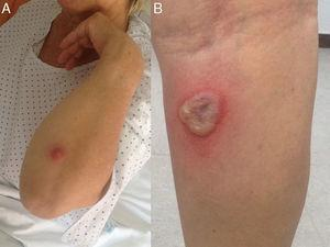 Cutaneous lesions on the arm (A) and on the back of the leg (B), corresponding to ecthyma gangrenosum.