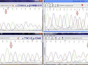 Chromatogram (Chromas software version 2.4.1) for the region containing some novel mutations. Red arrow shows the substituted nucleotide. Sequence analysis of PCR products from the promoter region and all exons was performed. Both strands were sequenced using the Big Dye Termination system in an ABI 310 capillary sequencer (Macrogen, South Korea). A, shows a single base pair deletion in nucleic acid position 323 (c.323delA) in exon 6, leading to premature truncation of the protein p.Q108RfsX10 which was observed in three patients (11%) in homozygous state. B, c.661insT&#59; p.V221CfsX6 is a novel homozygous single base pair deletion in exon 9 observed in one patient. C, the variant c.779C>T&#59; p.T260I (in exon 10) was detected in 18 of 28 (64%) patients. D, c.261T>A&#59; p.F87L in exon 6 of CTNS is the most common mutation in our population which was observed in six patients (21.4%) in heterozygote and homozygote states.