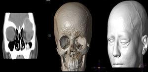 Cranial and orbital CT with pre-surgery reconstruction.