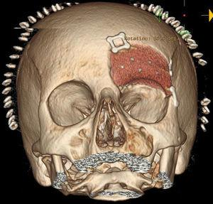 Cranial and orbital CT with post-surgery reconstruction.