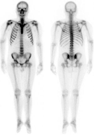 Bone scan showing a metabolic pattern related to the patient's hyperparathyroidism.