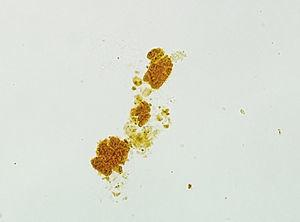 Urine sediment in which a bilirubin cast can be seen using an optical microscope (x40).