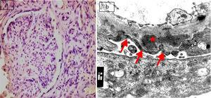 (a) Active lupus nephritis ISN/RPS class V (A), NIH activity index (12/24) NIH chronicity index (4/12) showing negative immunostaining for podocalyxin (original magnification ×400). (b) An electron micrograph for the same case showing marked diffuse fusion of podocyte foot processes (arrows) and subepithelial electron dense deposits (asterisks) (negative magnification ×22,000).