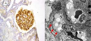 (a) Active lupus nephritis ISN/RPS class III (A), NIH activity index (4/24) NIH chronicity index (3/12) showing strong diffuse global immunostaining for podocalyxin 4+ (original magnification ×400). (b) An electron micrograph for the same case showing minimal fusion of podocyte foot processes (arrows) (negative magnification ×2800).