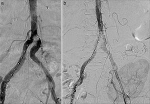 Intraoperative arteriography. (a) A calcified intraluminal lesion was observed at the origin of the left common iliac artery. (b) Post-implantation control of the coated stents without residual stenosis.