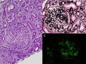 Glomerular mesangial and endocapillary hypercellularity (A), basement membrane duplication and crescent formation (B), and, mesangial and capillary C3 deposits by immunfluoresence (C) in renal biopsy (A, hematoxylin–eosin; B, periodic acid methenamin silver; C, anti-C3 FITC).