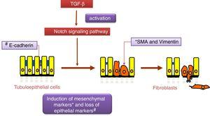 The Notch pathway regulates the epithelial–mesenchymal transition process induced by TGF-β in tubuloepithelial cells.