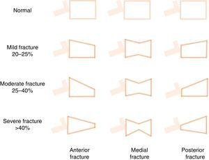 Schematic representation of Genant's semi-quantitative approach to the visual measurement of vertebral deformities. Normal=0&#59; mild=1&#59; moderate=2&#59; severe=3&#59; doubtful=0.5. Vertebral fractures are often diagnosed fortuitously (morphometric fracture), although diagnosis can also be made on the basis of symptoms. It is based on more than 20% loss of vertebral body height in any of the vertebral segments. The following formula is used: ([posterior height of the vertebral body−lowest height]/posterior height)×100.115,152