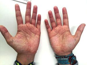 Palms of the hands.