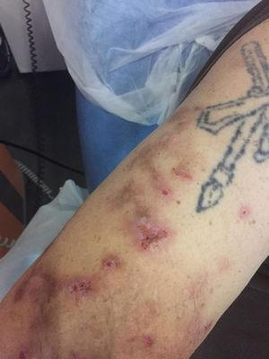 Lesions on the right arm.