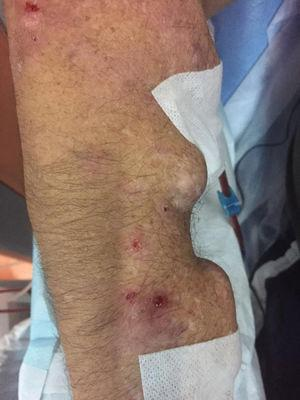 Lesions in regions of internal left humeral-cephalic AV fistula puncture. gr3.