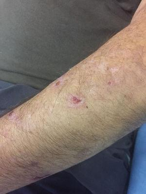Lesions on the left forearm.