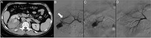 A 31-year-old patient with no relevant medical-surgical history who came to Accident and Emergency with low-back pain and frank haematuria. The patient reported a history of blunt-force trauma to the right lower back 48h previously. The CT angiogram shows a right renal laceration, a retroperitoneal haematoma, an arterial lesion with active bleeding, right pyelo-ureteral dilation with occupation of the urinary tract by blood clots (A). Through left femoral access and the placement of a 6F introducer, the right renal artery was catheterised with the help of a Multipurpose 4F catheter and a guidewire (0.014″) with atraumatic tip. The selective arteriogram shows active bleeding of the inferior segmental artery and an arteriocalyceal fistula (arrow) (B). The injured segmental artery was then catheterised with a 2.7F microcatheter (Progreat, Terumo®) (C) and embolised with controlled-release microcoils (Detach-18, Cook®), resolving the bleeding and excluding the fistula (D).