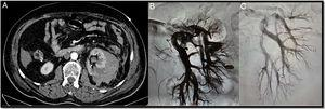 A 74-year-old postoperative patient after left upper partial nephrectomy who had frank haematuria with progressive and persistent anaemia requiring multiple transfusions. The CT angiogram (A) shows a left retroperitoneal-perirenal haematoma with two images suggestive of pseudoaneurysms. Through right femoral access and placement of a 6F introducer, the left renal artery was catheterised with the help of a 4F vertebral catheter and a guidewire (0.014″) with atraumatic tip. A selective arteriogram showed two pseudoaneurysms (B). The microcatheter 2.7F (Progreat, Terumo®) was then advanced through the vertebral catheter to the pseudoaneurysms and they were embolised with controlled-release microcoils (Detach-18, Cook®), with an optimal outcome (C).