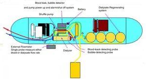 Diagram of WAK. Color code – Red: blood from patient; Blue: blood to patient; Yellow: dialysate to ultrafiltrate.