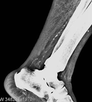 Simple X-ray of left ankle.