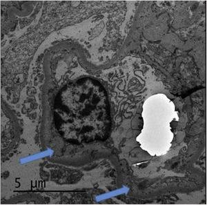 Electron microscopy with enlargement of the lamina rara interna (arrows) which can be seen in thrombotic microangiopathy.
