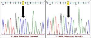 DNA sequence electropherograms of rs1801282 polymorphism in the PPARγ gene. Examples of homozygous dominant (JJ genotype) and homozygous recessive (jj genotype) condition of the studied SNP.