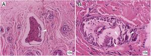 Histology with haematoxylin and eosin staining of the skin lesions. Perineural calcification (A) and medium-calibre vessel calcification (B) (arrows). These findings are consistent with calciphylaxis.