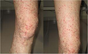 Physical examination showed neurofibromas and palpable purpura on the right leg.