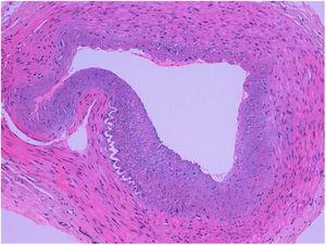 Transverse section of the temporal artery showing marked intimal thickening, without other alterations. No inflammation or infiltration by giant cells can be observed.