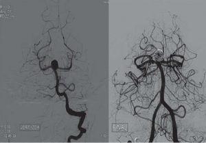 Imágenes angiográficas con sustracción digital en proyección posteroanterior, de un aneurisma sobre tronco basilar, en situación de preembolización y postembolización.