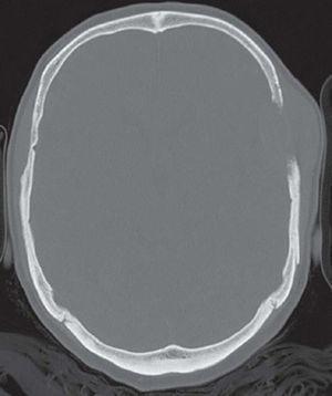 Imagen de tomografía computarizada con filtro de hueso en la que se observa imagen de destrucción ósea.