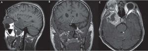 Imágenes compatibles con NF1. A) Plano sagital en el que se observa la tumoración cerebral siguiendo el trayecto del 5 par craneal. B) Plano coronal en el que se muestra una hipoplasia del ala esfenoidal. C) Imagen axial contrastada donde se pueden apreciar áreas quísticas.