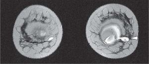 Resonancia magnética de mama. Ruptura de prótesis con migración de silicona de mama izquierda (punta de flecha).