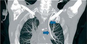 Tomografía computarizada de tórax.