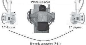 Método de obtención de una radiografía estereoscópica.