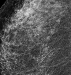 Comprobación radiológica de colocación de clips intratumoral.