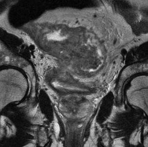 Estadio T4. El tumor presenta una infiltración de gran alcance, rebasando la fascia mesorrectal e invadiendo la vejiga y otras estructuras.