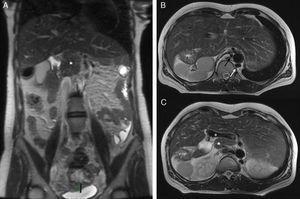 A) Corte coronal de RM potenciada en T2 (SSFSE). Páncreas truncado: nódulo hipointenso en la zona media del abdomen (*). B) Corte axial de RM potenciada en T2 (FRFSE). Hígado dispuesto en la línea media, con gran parte del lóbulo izquierdo situado en el hipocondrio izquierdo. Cámara gástrica situada en el hipocondrio derecho junto con al menos 5bazos. En este corte también llama la atención la ausencia de vena cava retrohepática junto con la vena ácigos (flecha blanca) y la hemiácigos (flecha negra) aumentadas de tamaño que enlazan inferiormente: la vena ácigos con la vena cava inferior y la vena hemiácigos con la vena renal izquierda. C) Corte axial de RM potenciada en T2 (FRFSE). Vena porta en situación anómala preduodenal (o). Páncreas truncado en la línea media del abdomen (*).