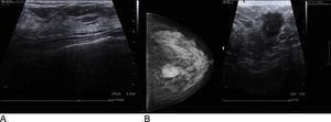 A) Ecografía benigna; se observa tejido mamario y músculo. B) Ecografía y mamografía con nódulo maligno; se observa un nódulo de forma irregular (ecografía) y pequeñas calcificaciones (mamografía).