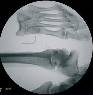 Radiografía de extremidades inferiores: líneas de Harris en el extremo distal de la tibia izquierda apreciándose el pie totalmente desarticulado. Letra L-left de alambre.