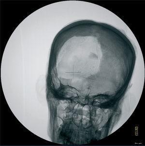 Radiografía de cráneo anteroposterior. Signos de excerebración con fractura de la lamina cribosa y apófisis crista galli. Fractura de la calota craneal por expoliación.
