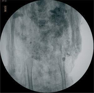 Estudio de la edad. Radiografía de un niño menor de 3 años, en la que se aprecian los cartílagos de crecimiento.
