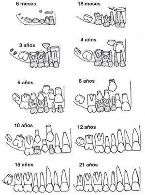 Cronología de la erupción dentaria, tabla de dentición10.