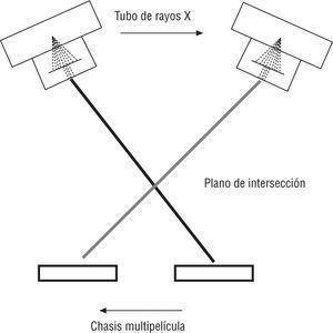 Esquema del movimiento del tomógrafo multipelícula.