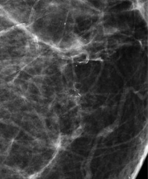 Carcinoma ductal in situ.