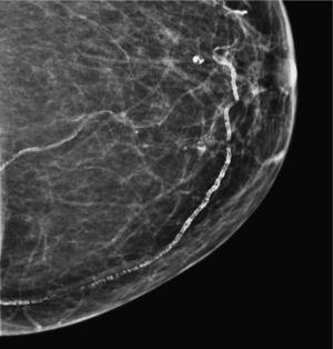 Calcificaciones vasculares.