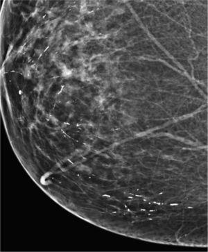 Calcificaciones de secreción láctea (mastitis de células plasmáticas).
