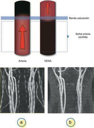 a)Adquisición sin banda saturación; presencia de flujo venoso y arterial. b)Aplicación de la banda saturación; saturación de flujo venoso permitiendo visualización flujo arterial.