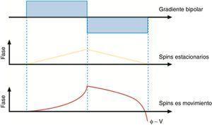 Fenómeno físico de la técnica Phase contrast (PC). A través de un gradiente bipolar los espines de los tejidos estacionarios se saturan, mientras que los espines en movimiento no permanecen saturados.