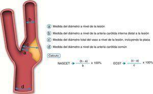 Comparativa entre el criterio NASCET y el criterio ECST.