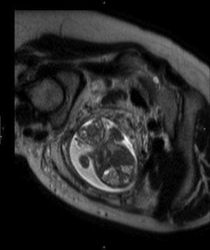 Cuello fetal acortado y ausencia de huesos craneales.