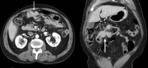 TC multidetector en el plano axial (izquierda) y coronal (derecha). Engrosamiento mural estenosante del colon transverso sugestivo de neoplasia (flechas).
