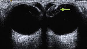 Comparación del cristalino normal (derecha) con el aumento de ecogenicidad y grosor (izquierda) que se corresponde con la catarata (flecha).