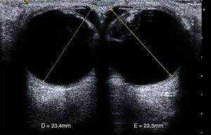 Medidas normales de ambos globos oculares, desde la córnea hasta la retina.